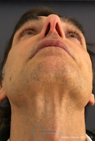 Rhinoplasty: Patient 81 - Before Image 2