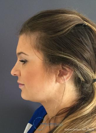 Rhinoplasty: Patient 80 - Before and After Image 6