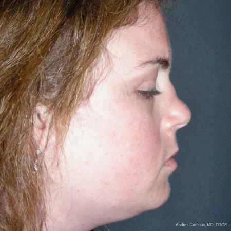 Reconstructive Rhinoplasty: Patient 4 - Before Image 3