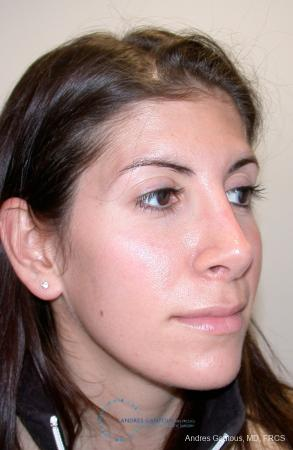 Revision Rhinoplasty: Patient 1 - After Image 2