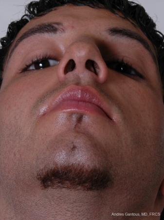 Rhinoplasty: Patient 13 - Before and After Image 4