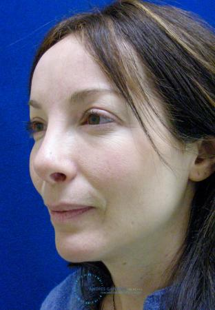 Revision Rhinoplasty: Patient 2 - After Image 3