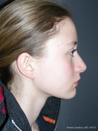 Rhinoplasty: Patient 57 - Before Image 3