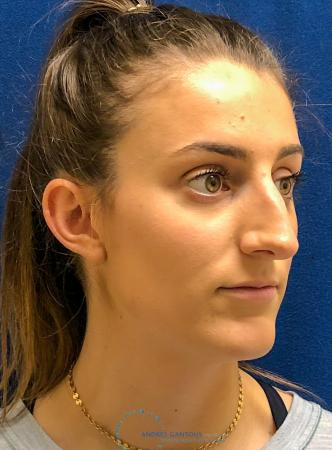 Rhinoplasty: Patient 7 - Before Image 3