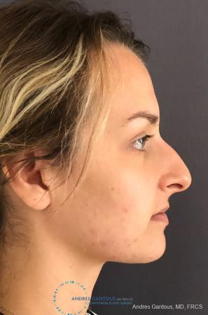 Rhinoplasty: Patient 90 - Before Image 5
