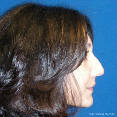 Rhinoplasty: Patient 43 - Before and After Image 5