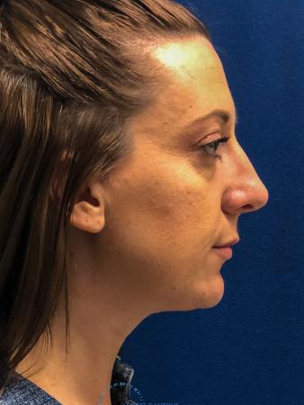Rhinoplasty: Patient 27 - Before Image 5