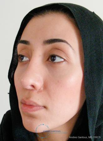 Revision Rhinoplasty: Patient 5 - After Image 4