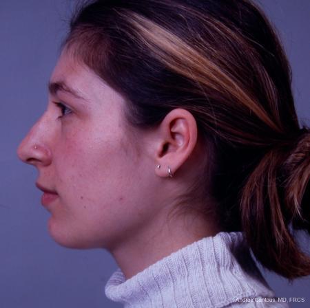 Rhinoplasty: Patient 33 - Before Image 4