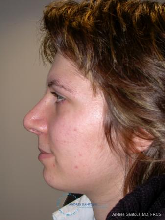Rhinoplasty: Patient 93 - After Image 5