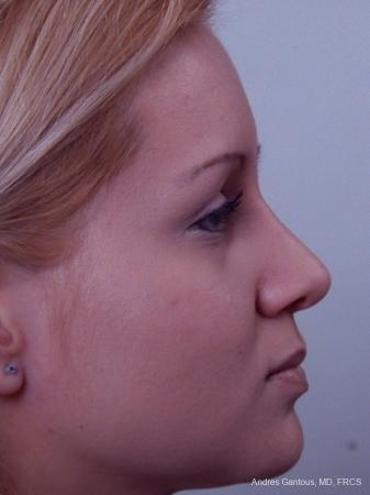 Rhinoplasty: Patient 23 - After Image 3
