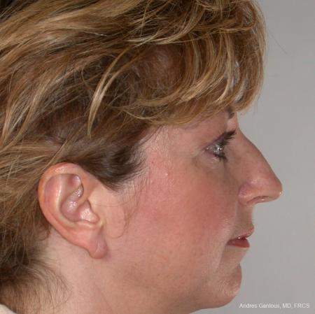 Rhinoplasty: Patient 36 - Before Image 2