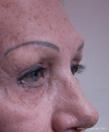 Eyelid Lift: Patient 8 - Before Image 2