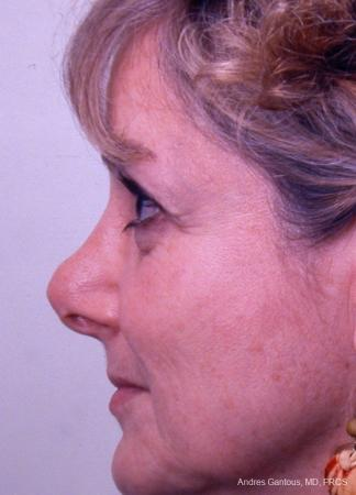 Revision Rhinoplasty: Patient 8 - Before and After Image 6