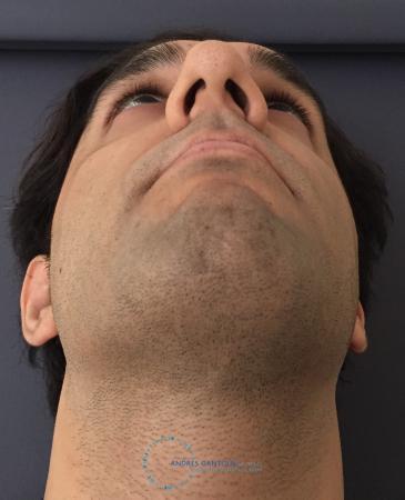 Rhinoplasty: Patient 64 - Before Image 2