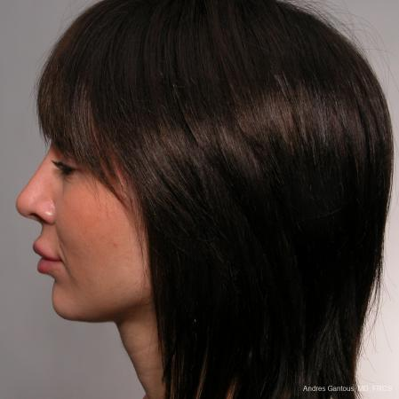Rhinoplasty: Patient 38 - After Image 3