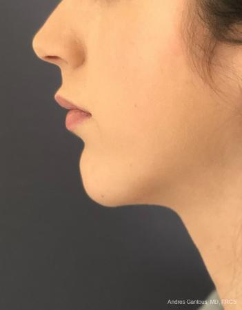 Chin Augmentation: Patient 6 - After Image 2