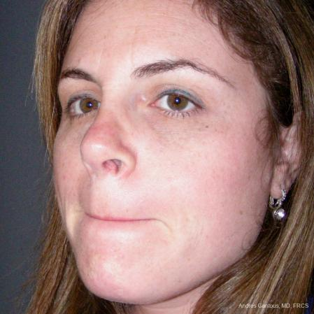Reconstructive Rhinoplasty: Patient 4 - After Image 4