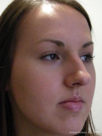 Rhinoplasty: Patient 22 - Before Image 2