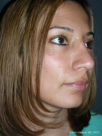 Rhinoplasty: Patient 58 - After Image 2