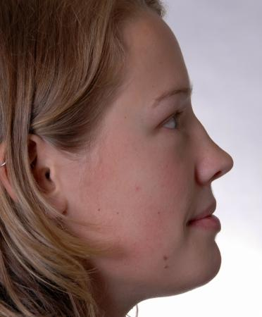 Reconstructive Rhinoplasty: Patient 3 - Before and After Image 4
