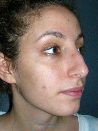 Rhinoplasty: Patient 74 - Before Image 3