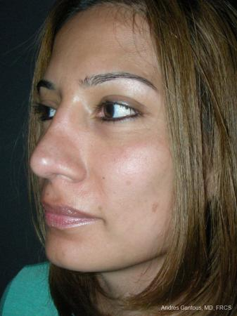 Rhinoplasty: Patient 59 - After Image 4
