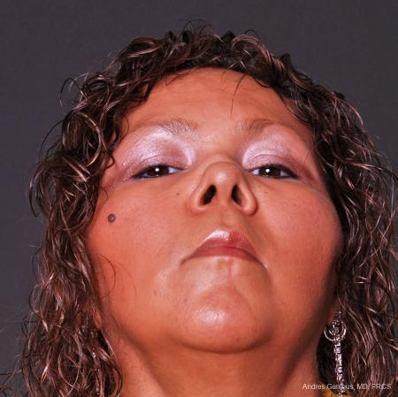 Reconstructive Rhinoplasty: Patient 1 - Before and After Image 4