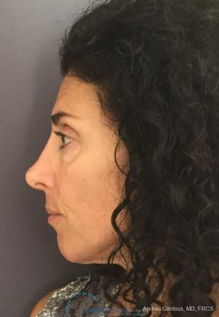 Revision Rhinoplasty: Patient 6 - Before Image 5