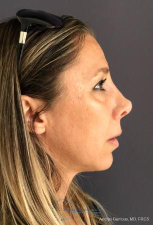 Revision Rhinoplasty: Patient 3 - Before Image 5