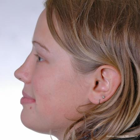Reconstructive Rhinoplasty: Patient 3 - Before Image 3