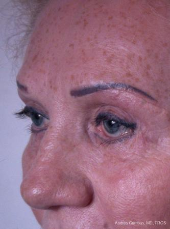 Eyelid Lift: Patient 8 - After Image 4