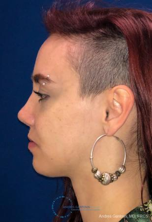 Revision Rhinoplasty: Patient 11 - After Image 5