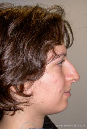 Rhinoplasty: Patient 93 - Before Image 4