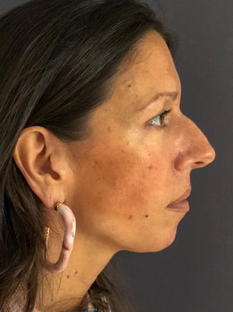 Rhinoplasty: Patient 9 - Before Image 4