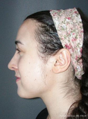 Rhinoplasty: Patient 59 - After Image 5