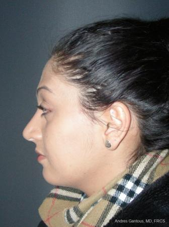 Rhinoplasty: Patient 46 - After Image 5