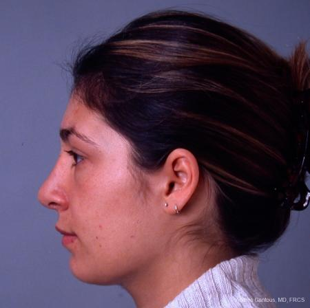 Rhinoplasty: Patient 33 - After Image 4