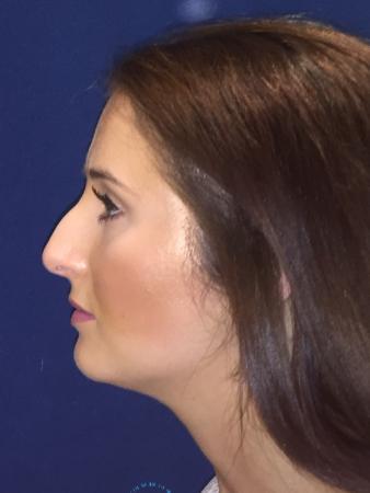 Rhinoplasty: Patient 1 - Before Image 5