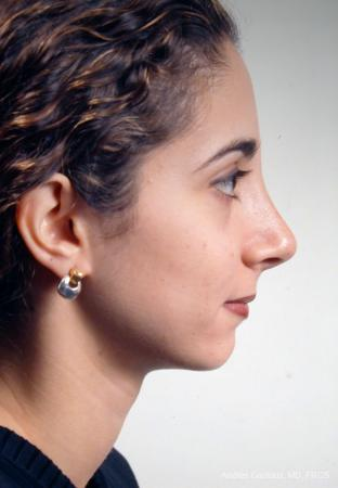 Rhinoplasty: Patient 14 - After Image 5