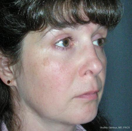 Reconstructive Rhinoplasty: Patient 5 - After Image 2