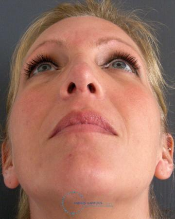 Revision Rhinoplasty: Patient 16 - After Image 2