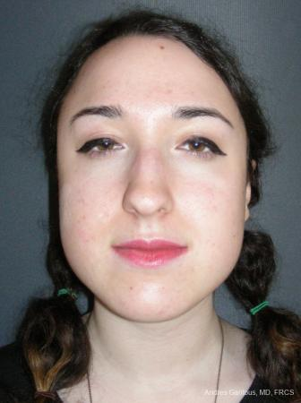 Rhinoplasty: Patient 59 - Before Image 1