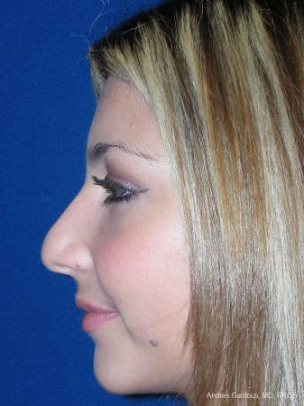 Rhinoplasty: Patient 31 - Before and After Image 4