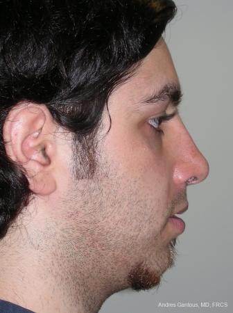 Rhinoplasty: Patient 13 - After Image 3
