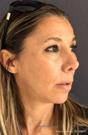 Revision Rhinoplasty: Patient 3 - Before Image 4