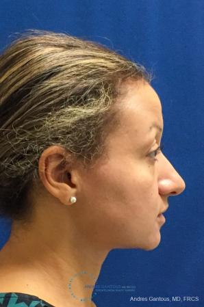 Rhinoplasty: Patient 97 - Before Image 5