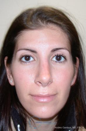 Revision Rhinoplasty: Patient 1 - After Image 1