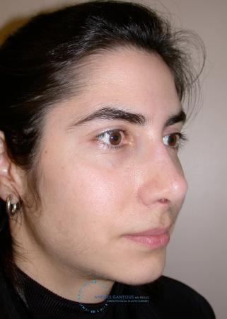 Revision Rhinoplasty: Patient 15 - After Image 4