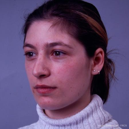 Rhinoplasty: Patient 33 - Before Image 2